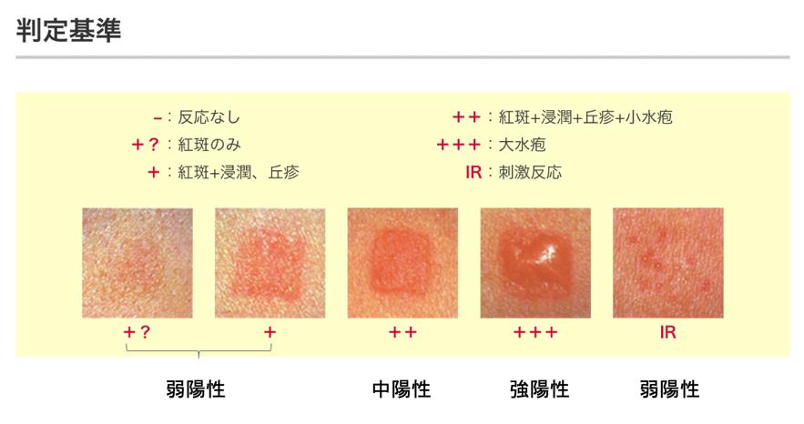 金属アレルギー 判定基準