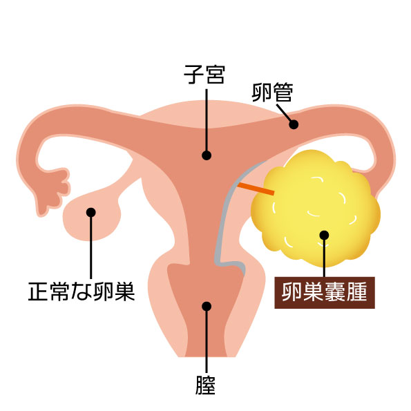 卵巣 嚢腫 痛み チクチク